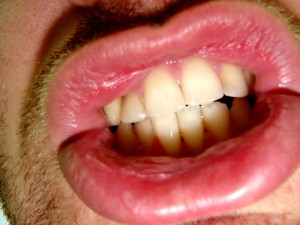 dientes 3