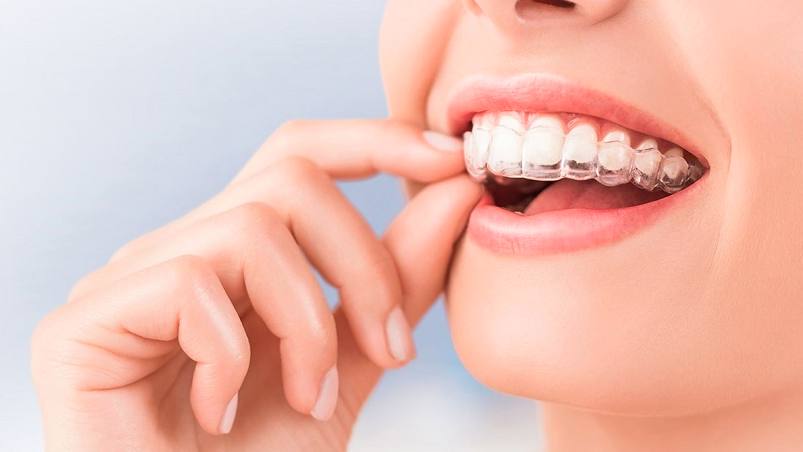 Invisalign beneficios