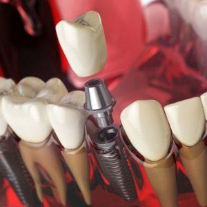 priimplantitis en implantes dentales