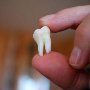 tipos de dientes y su función